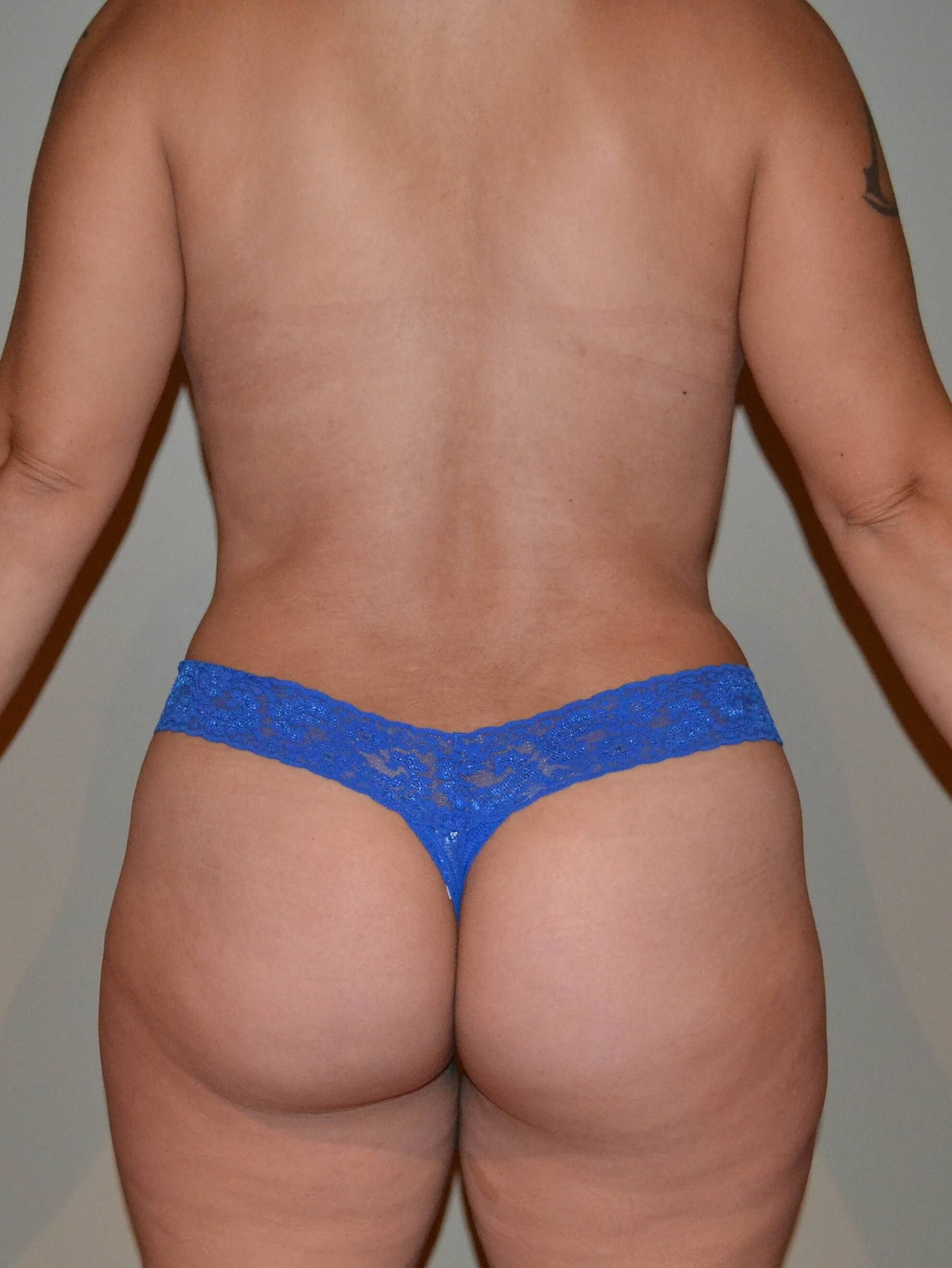 Tummy tuck After, back view