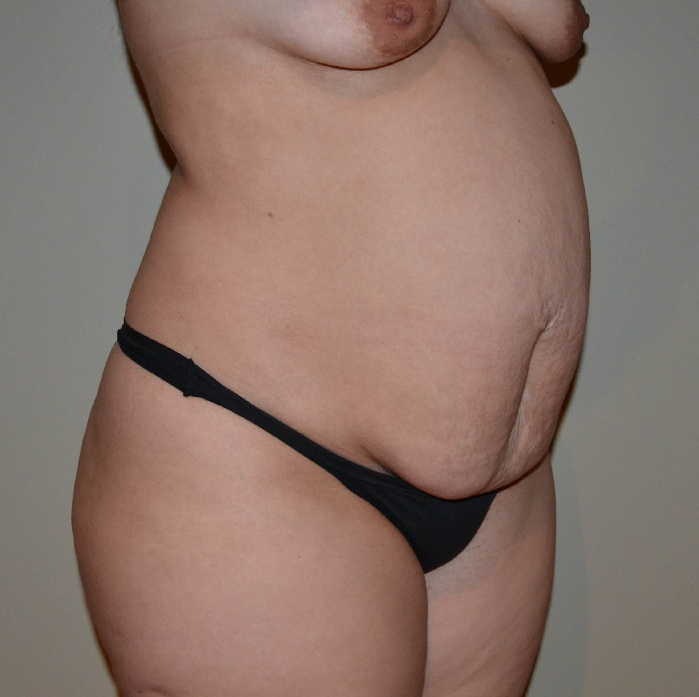 Tummy tuck Before, frontal 3/4 view