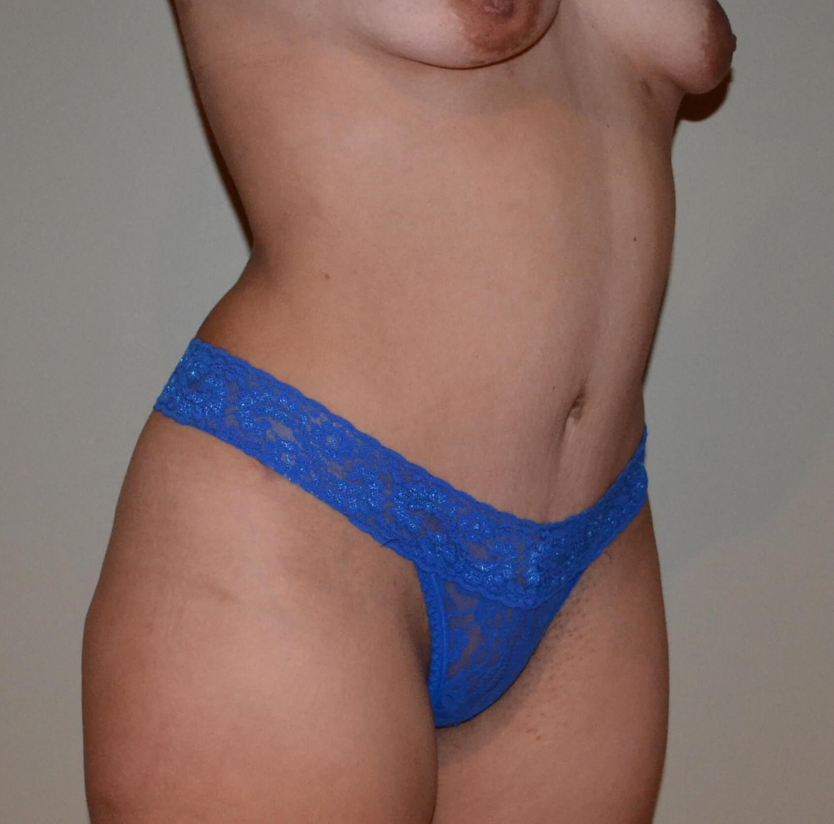 Tummy tuck After, frontal 3/4 view