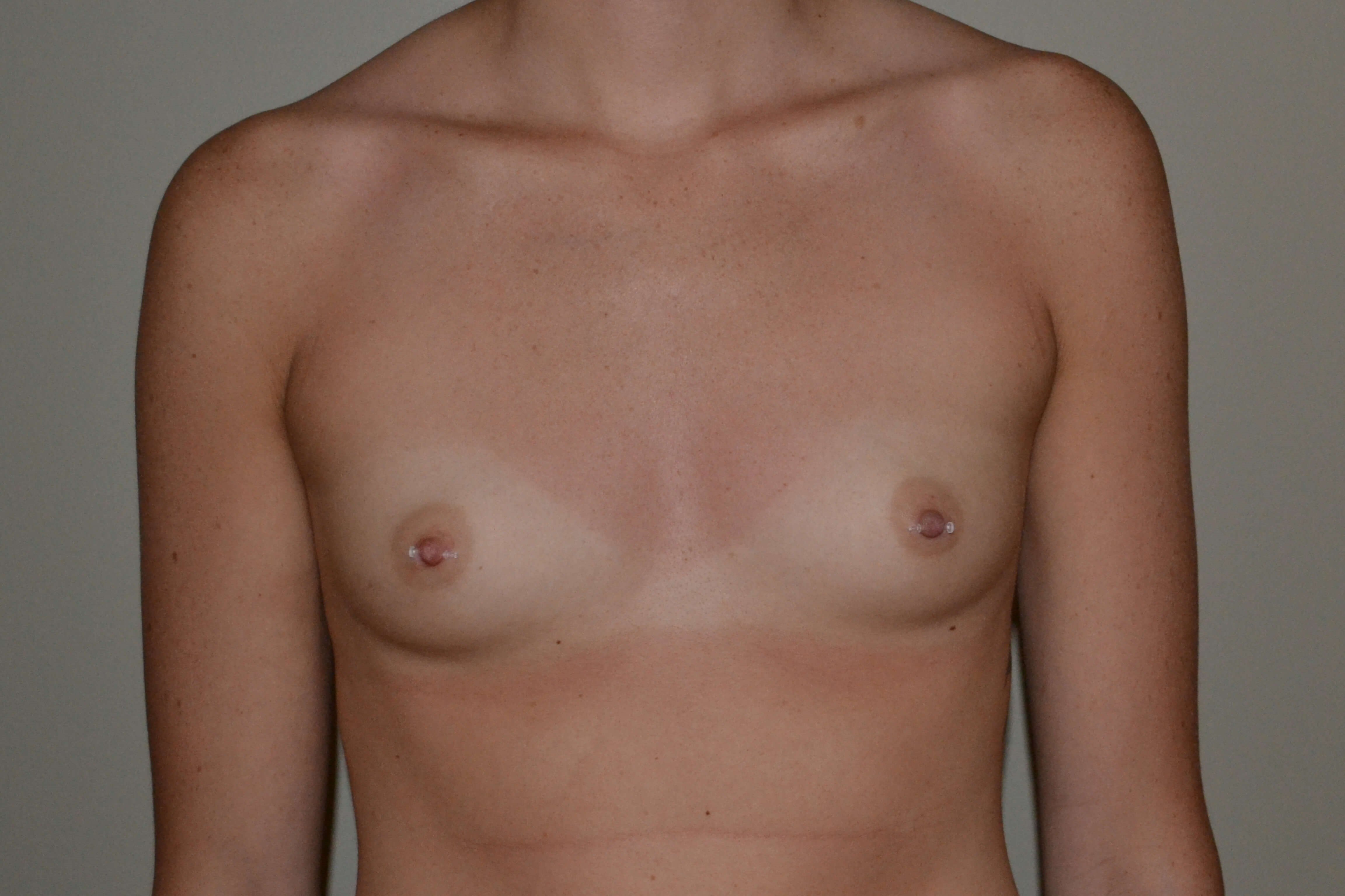 Breast Augmentation Before, frontal view