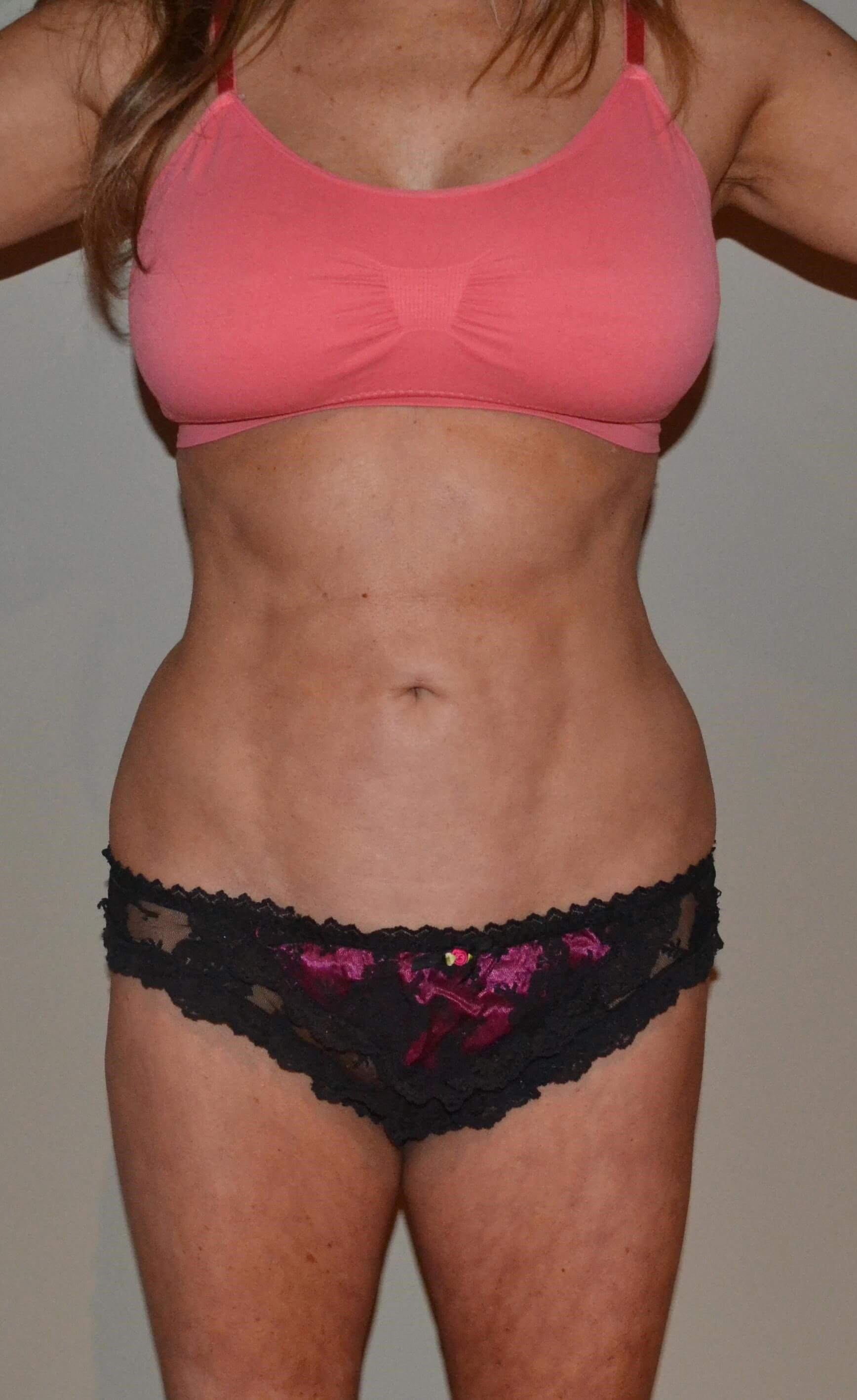 VASER Hi Def Lipo After, frontal view