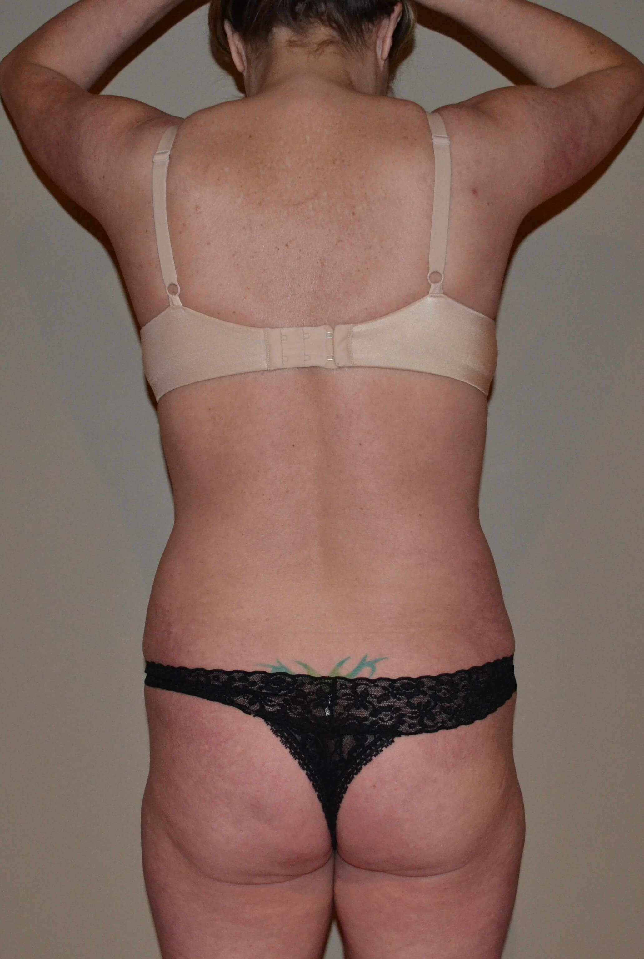 VASER Hi Def Lipo Before, back view