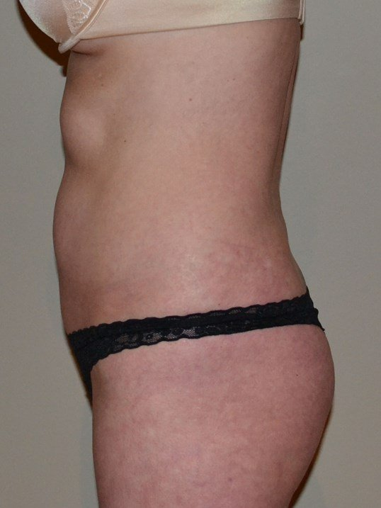 VASER Hi Def Lipo Before, side view