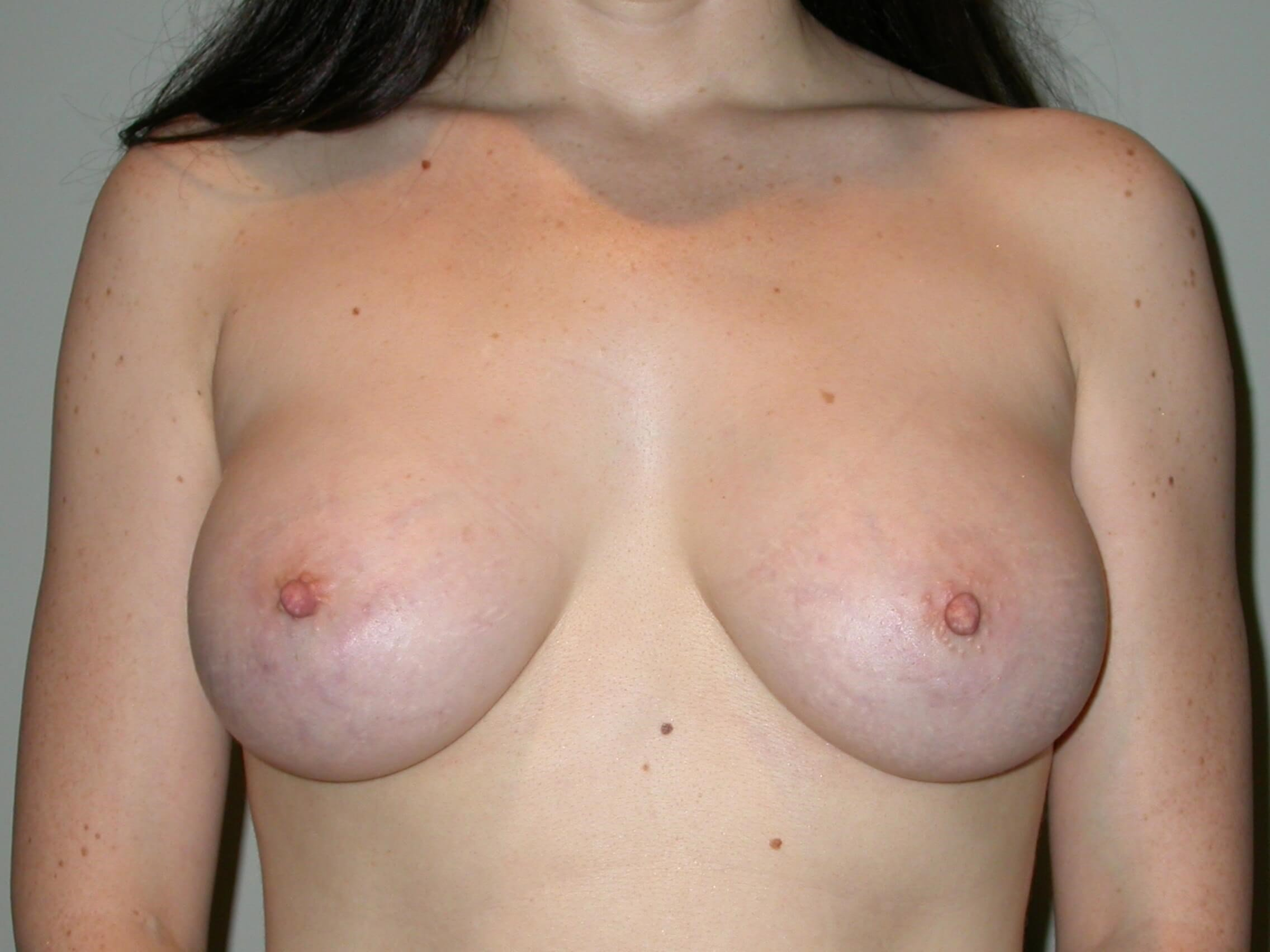 Breast Augmentation After, frontal view