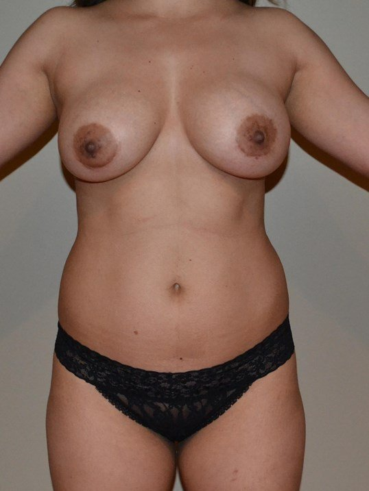Breast augmentation with fat Before, frontal view