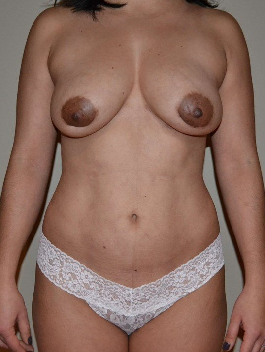 Breast augmentation with fat After, frontal view