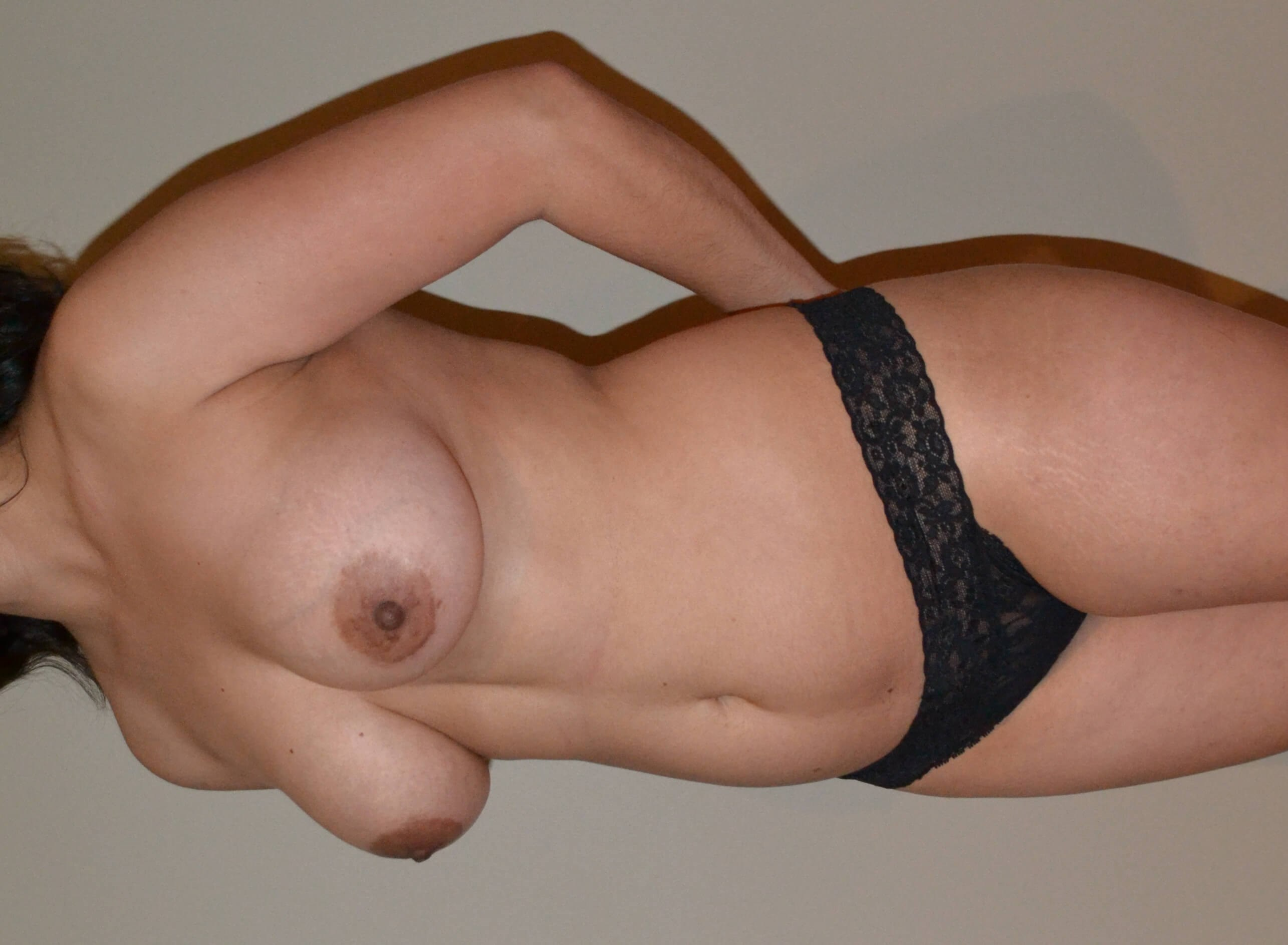 Breast augmentation with fat Before, 3/4 frontal view