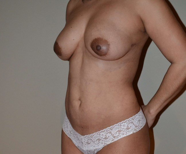 Breast augmentation with fat After, 3/4 frontal view