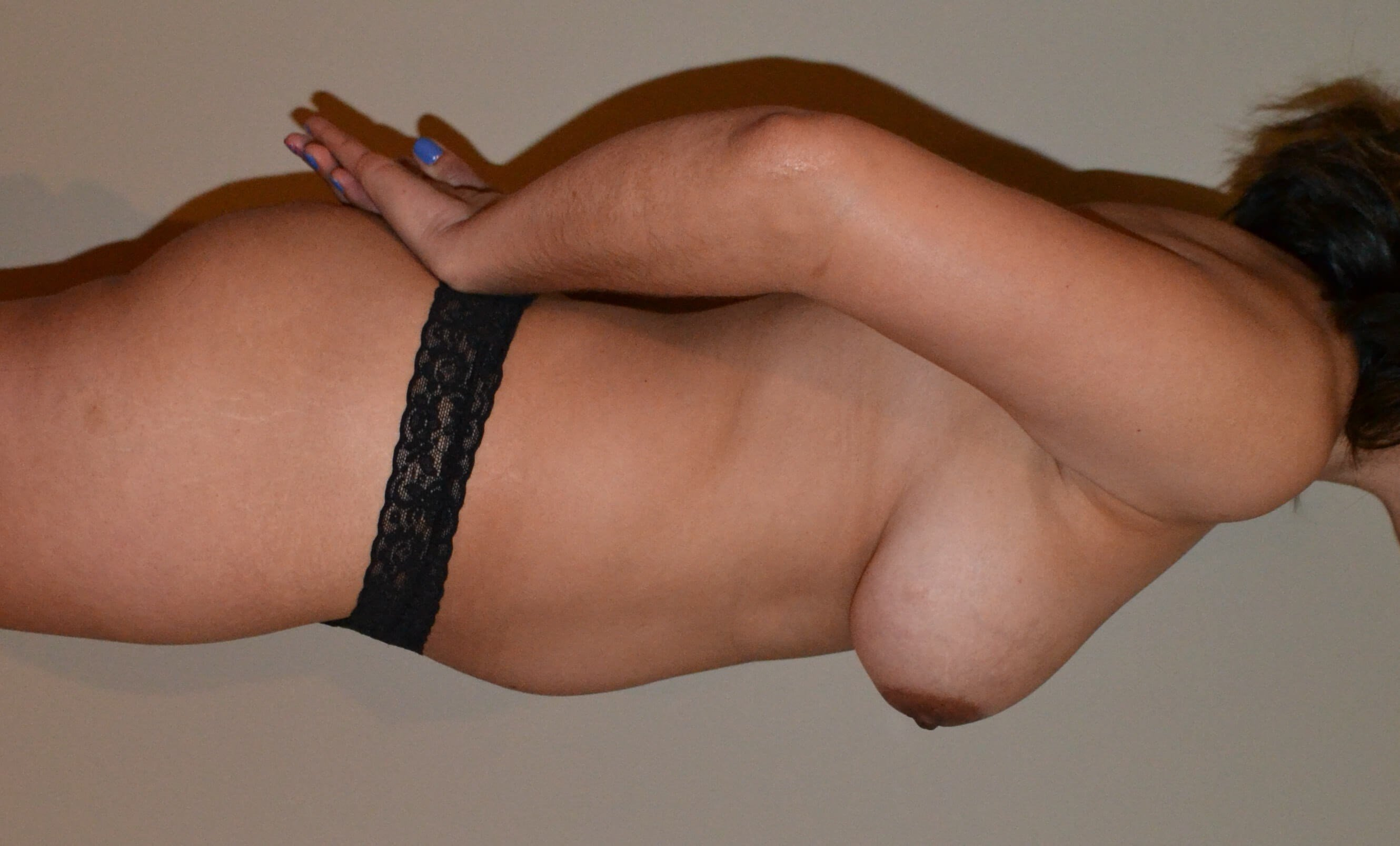 Breast augmentation with fat Before, side view