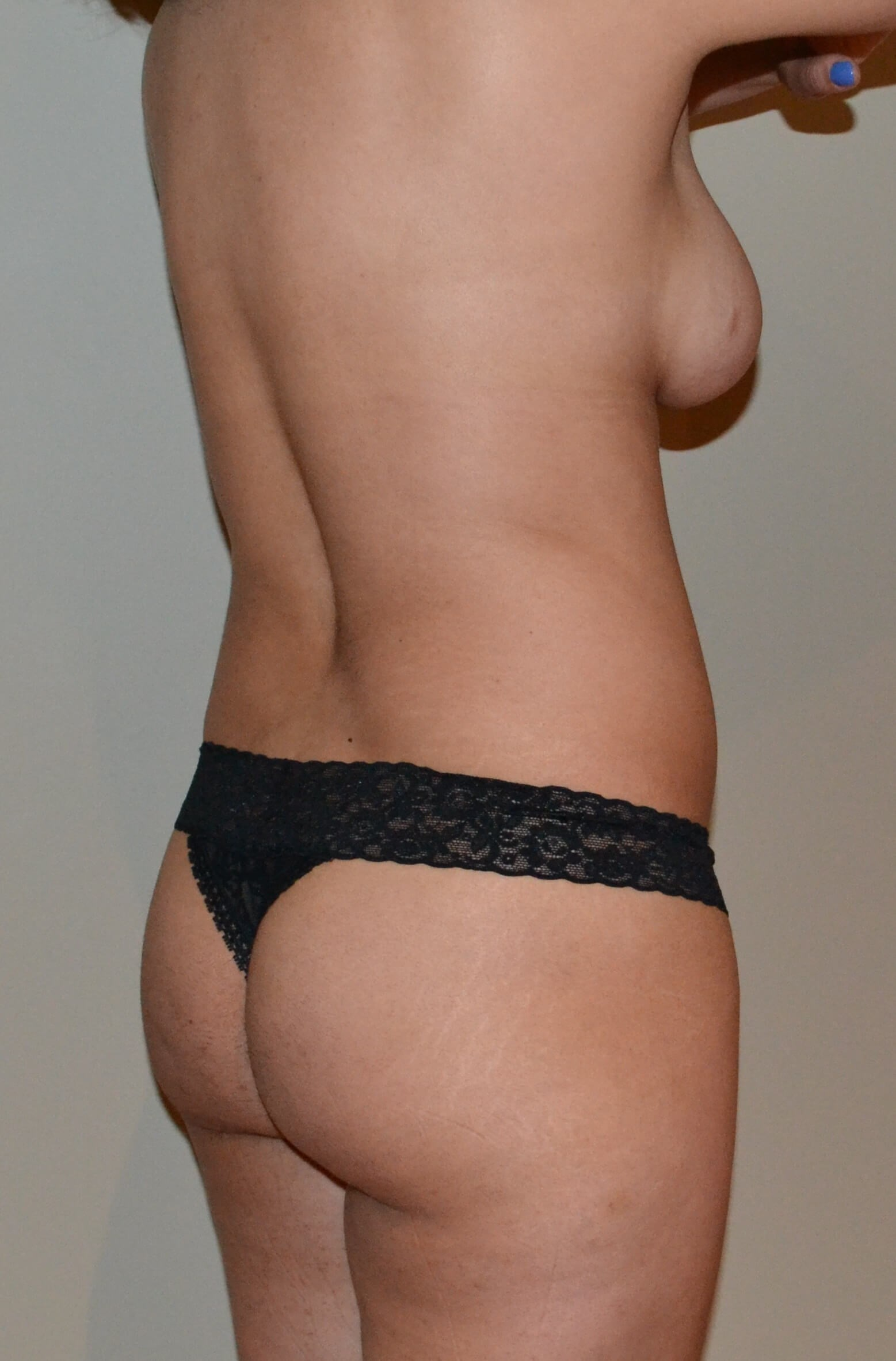 Breast augmentation with fat Before, 3/4 back view