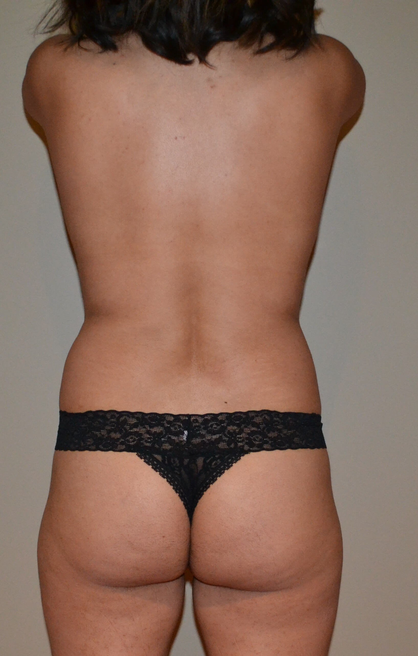 Breast augmentation with fat Before, back view