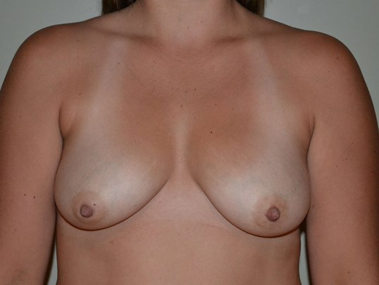 Breast Augmetation Before, frontal view