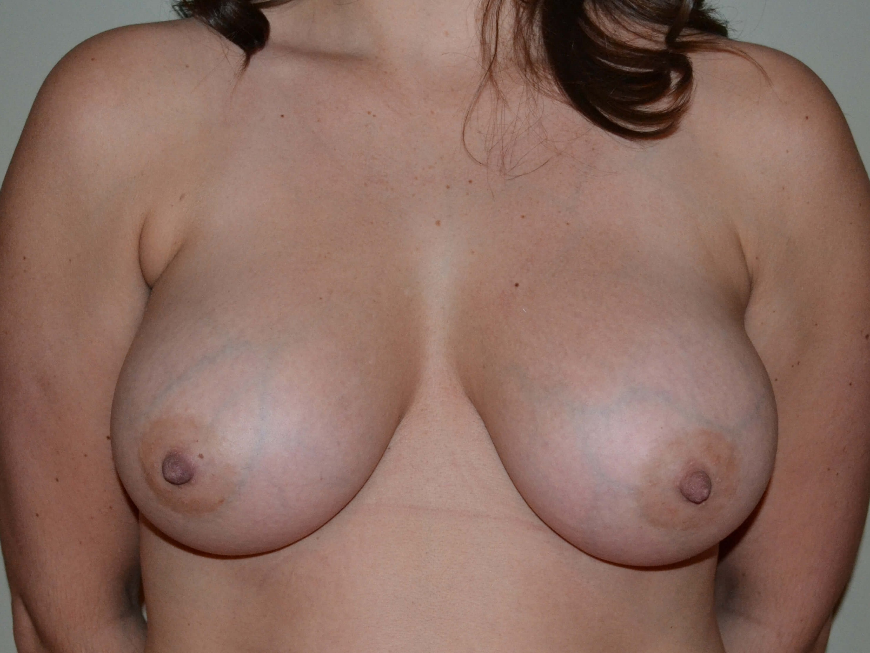 Breast Augmetation After, frontal view