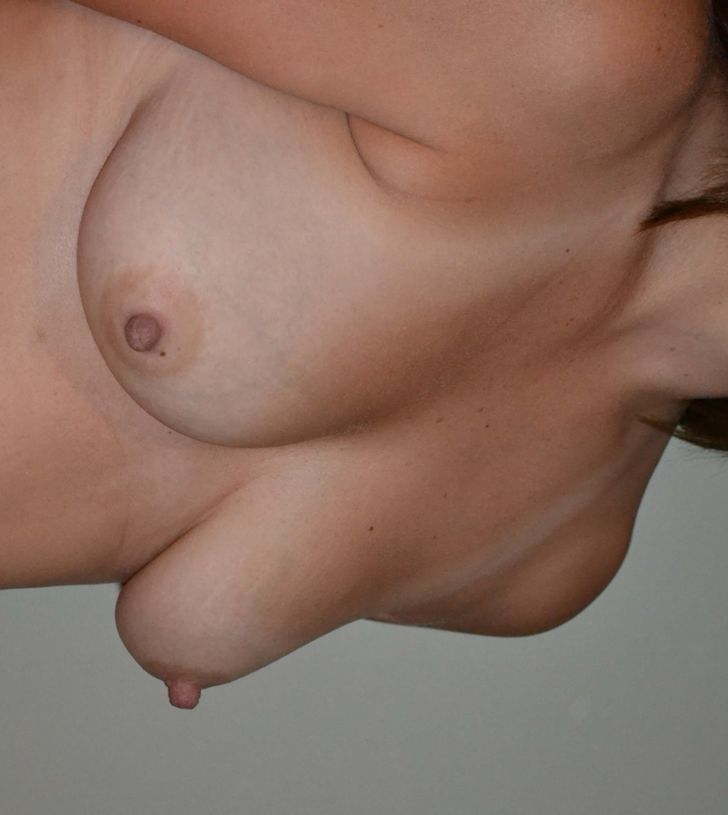 Breast Augmetation Before, 3/4 frontal
