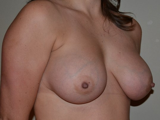 Breast Augmetation After, 3/4 frontal