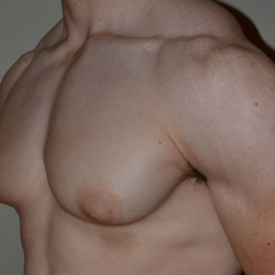 Gynecomastia Reduction Before 3/4 frontal view