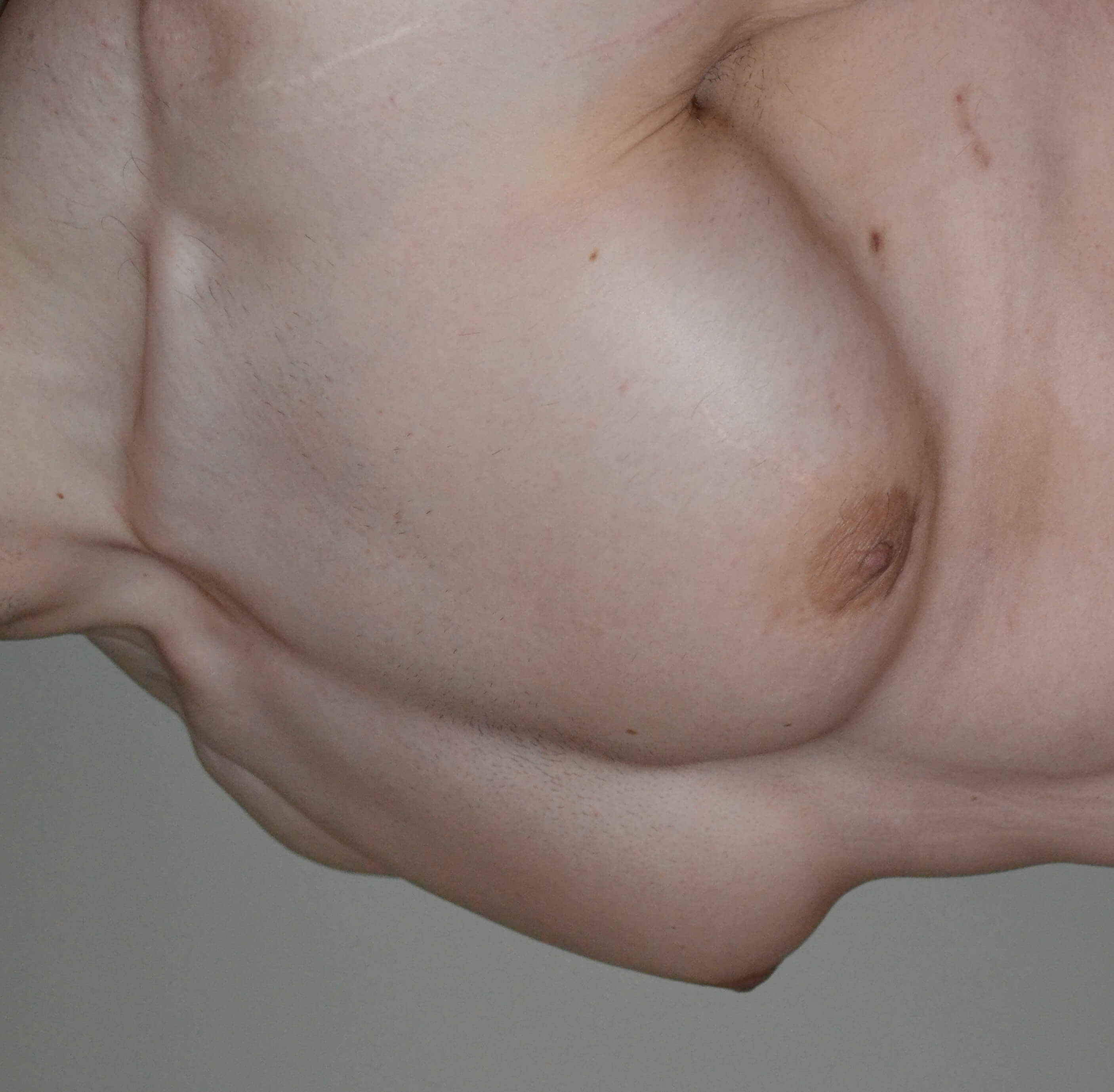 Gynecomastia Reduction After, 3/4 frontal view
