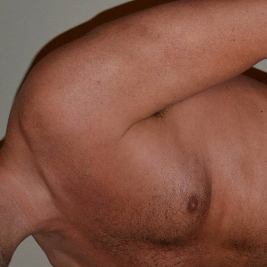 Gynecomastia Reduction Before, 3/4 view