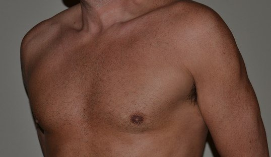 Gynecomastia Reduction After, 3/4 view