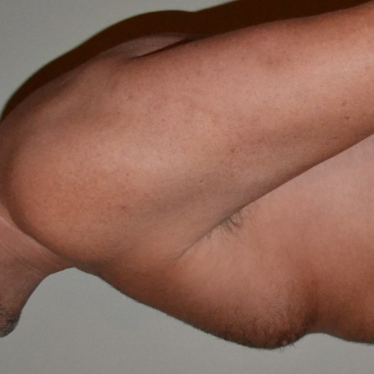 Gynecomastia Reduction Before, side