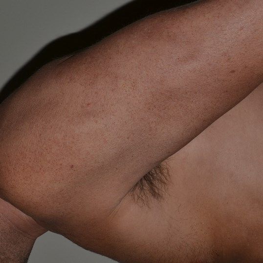 Gynecomastia Reduction After, side