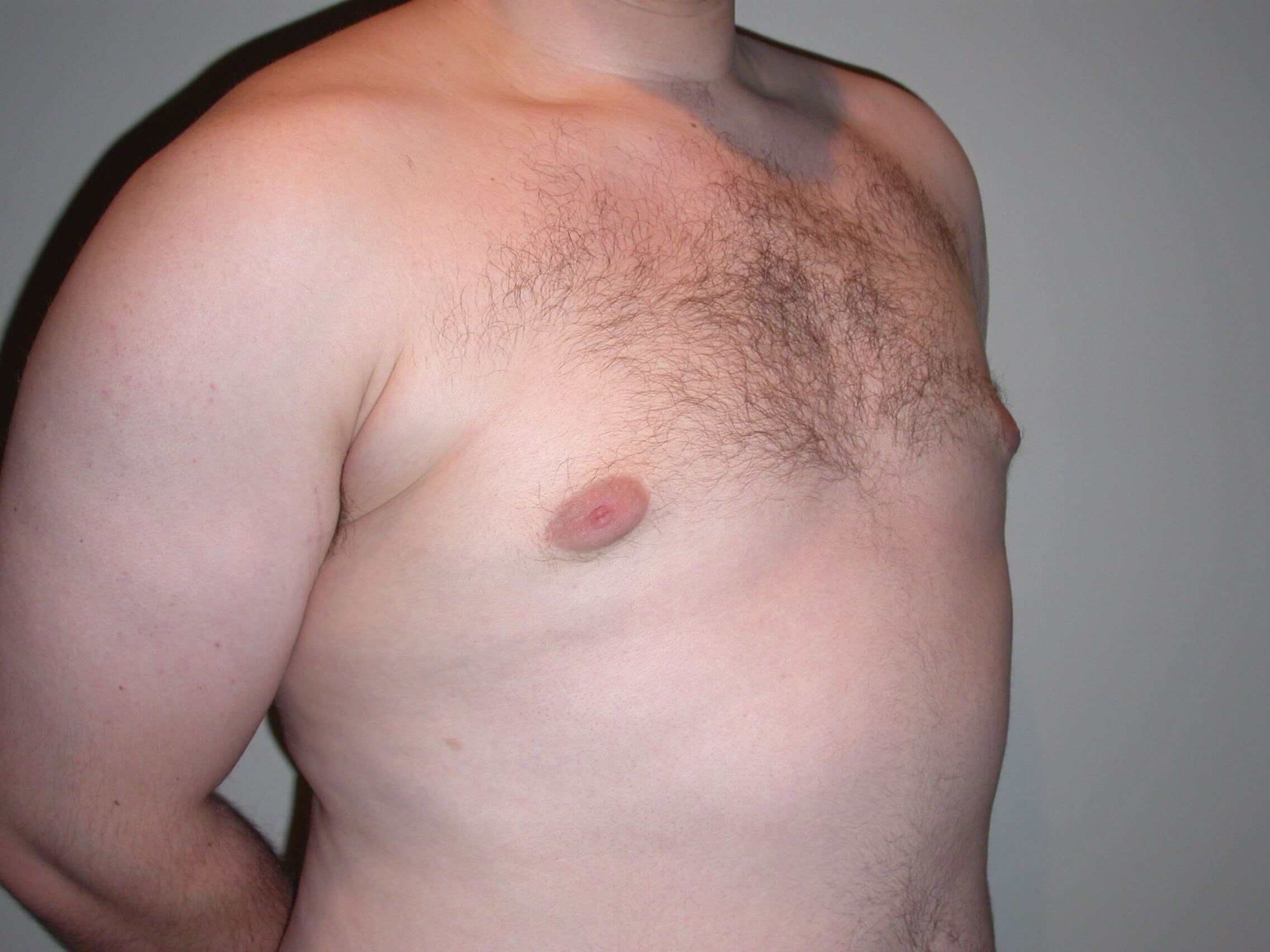 Gynecomastia After, 3 months postop