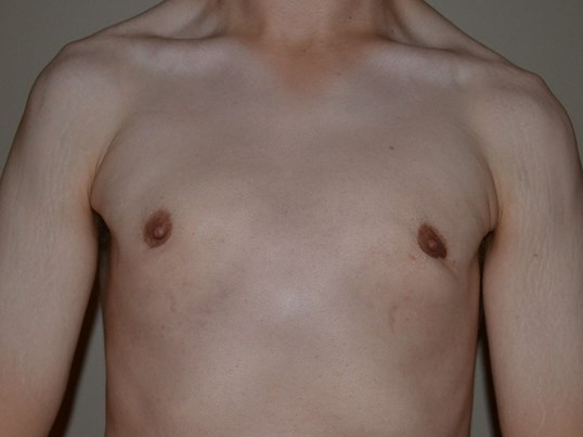 Gynecomastia After, 1 year postop