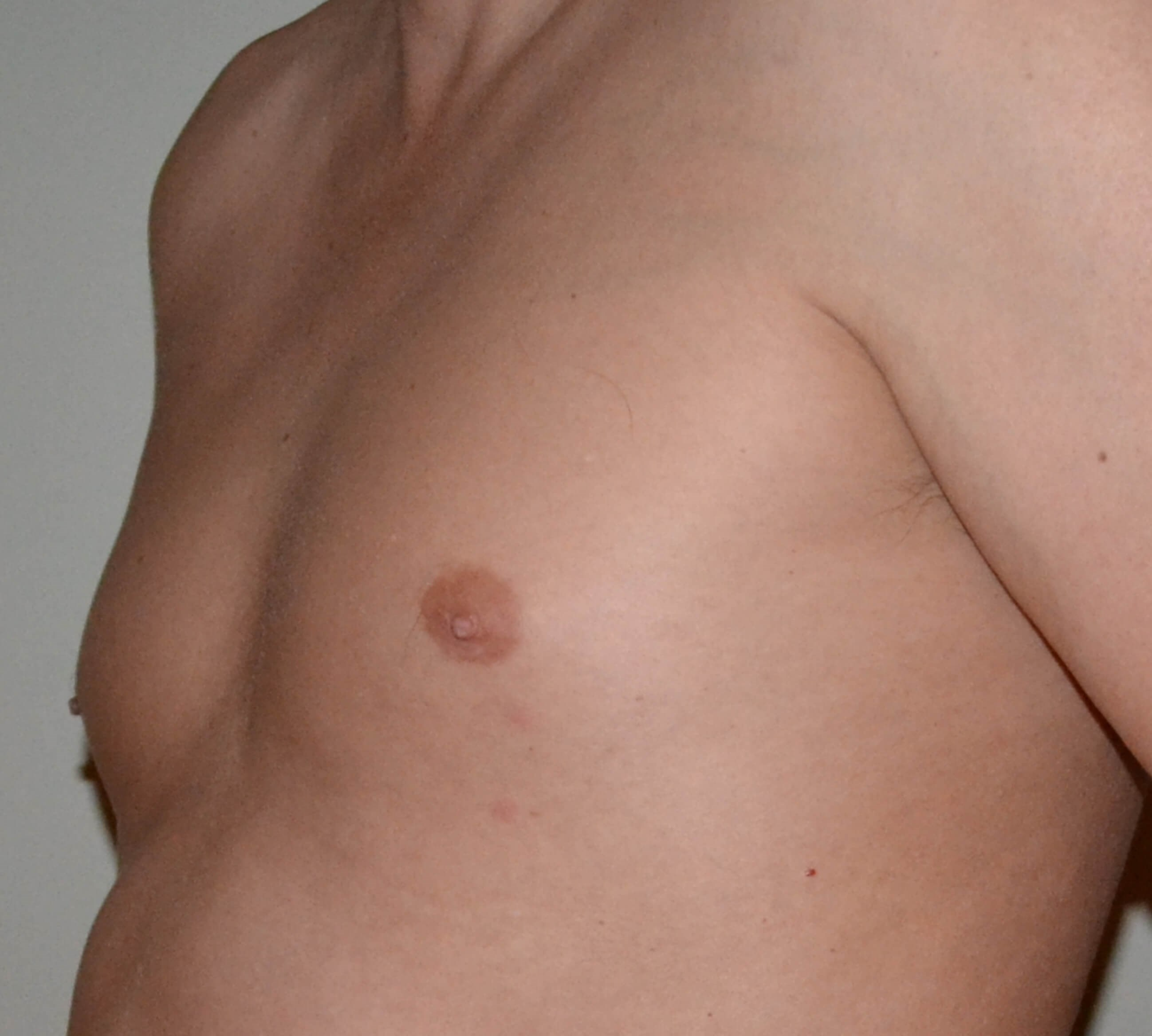 Gynecomastia Before