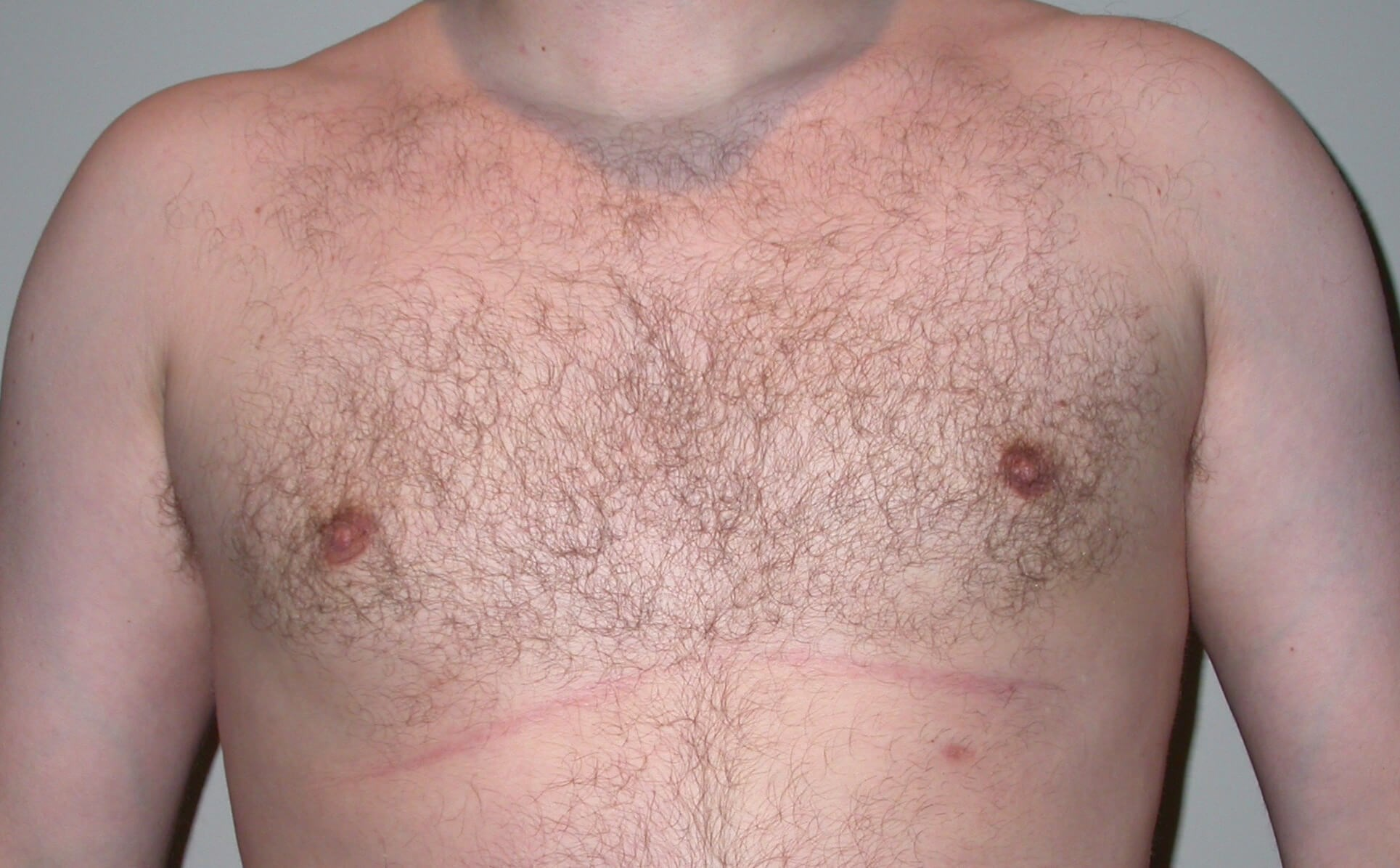 Gynecomastia After, 4 months postop