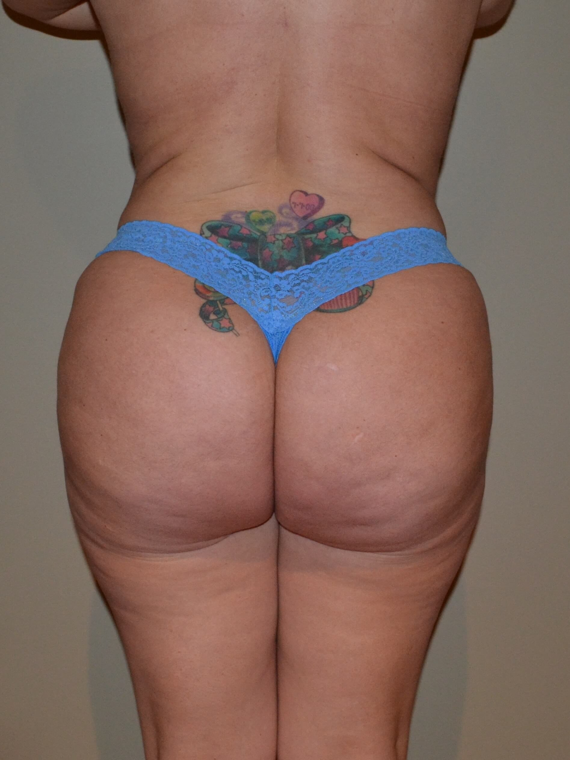 Brazilian Butt Lift After, 8 months post