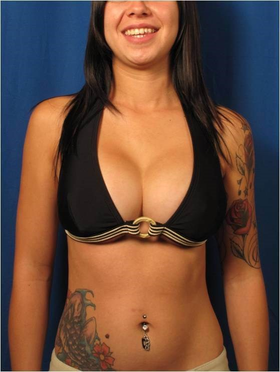 Breast Augmentation Full Dcup After