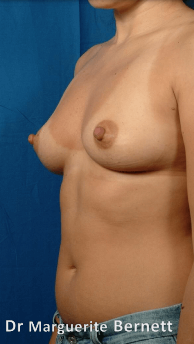 Breast Augmention Before