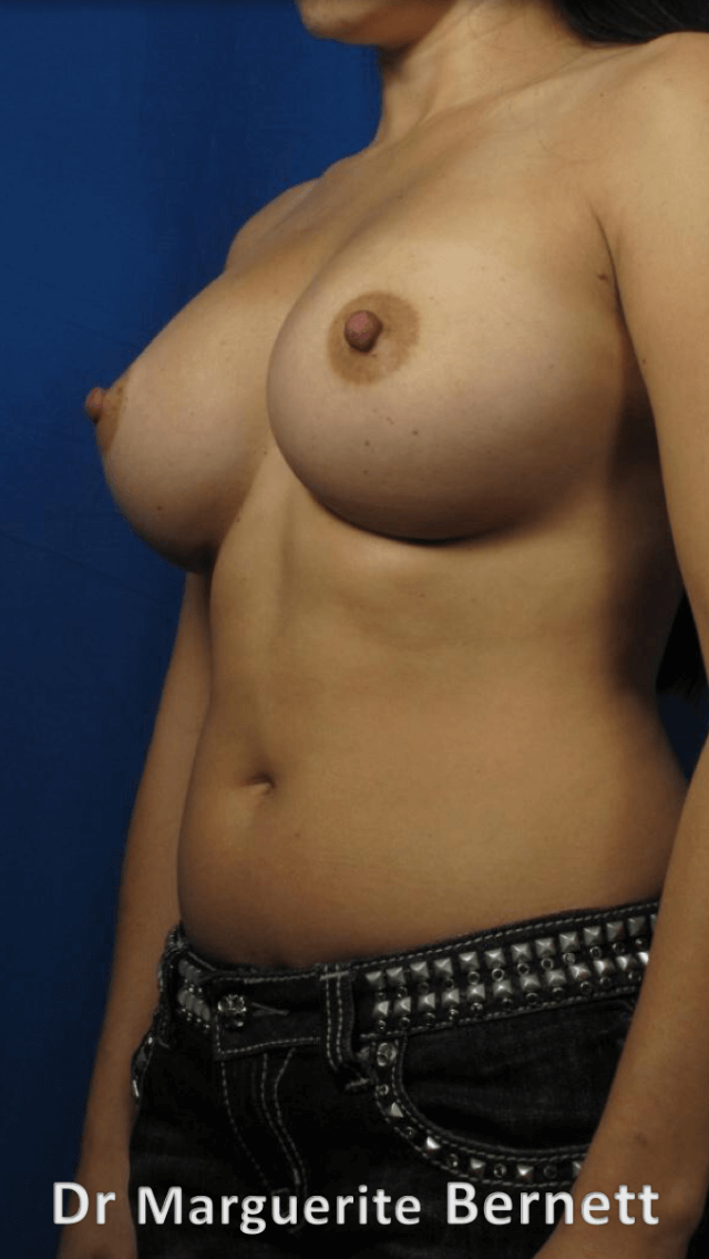 Breast Augmention After