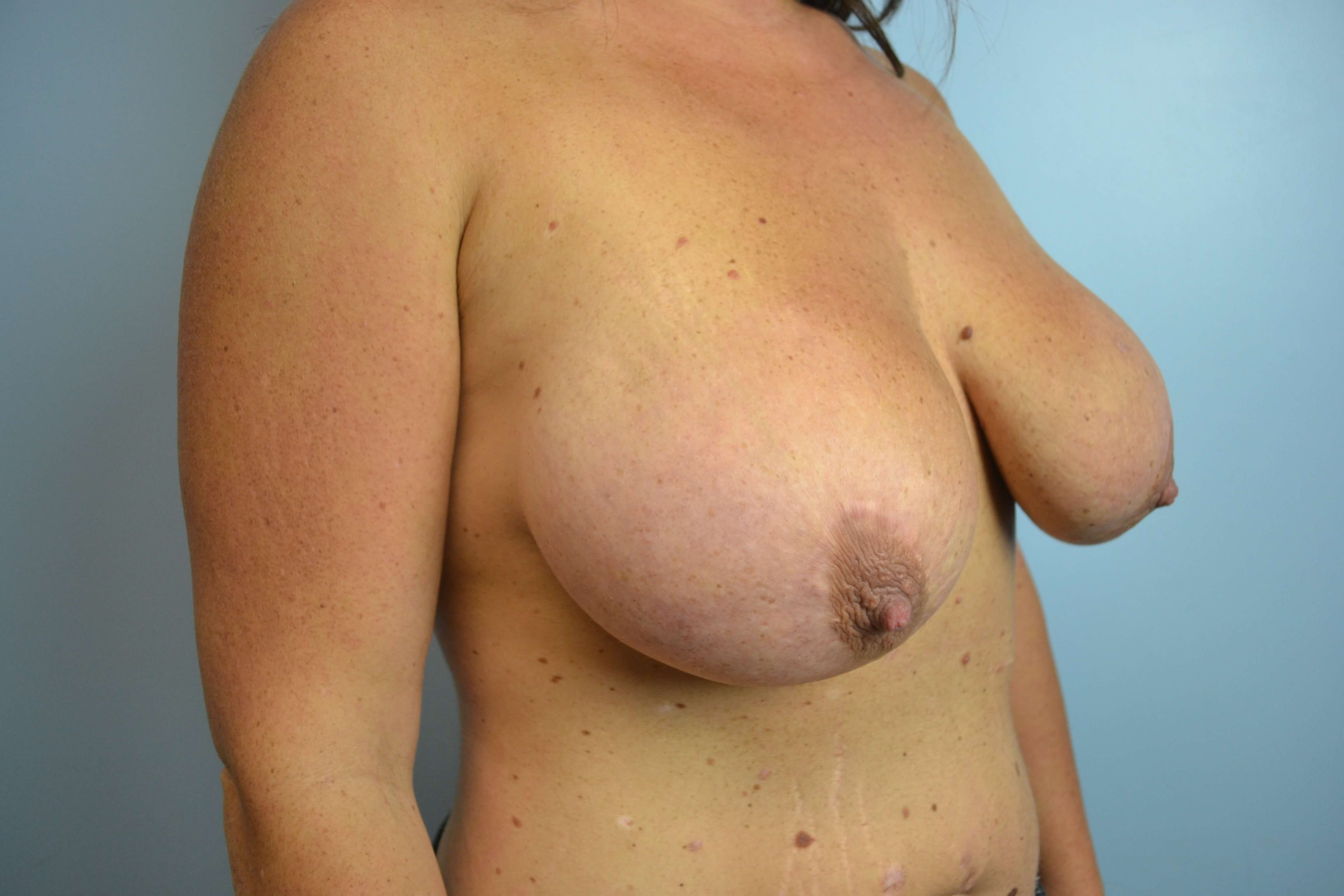 Breast lift/implant exchange Before