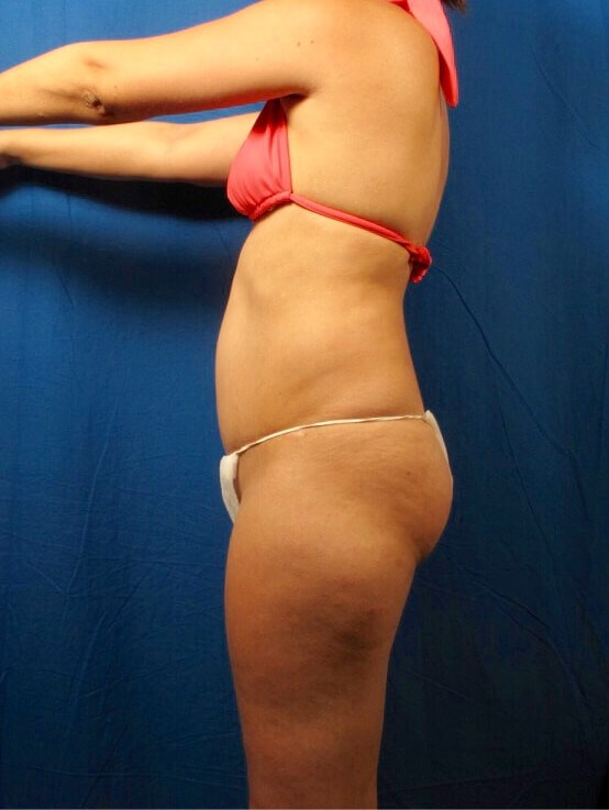 Liposuction/Fat Transfer Before