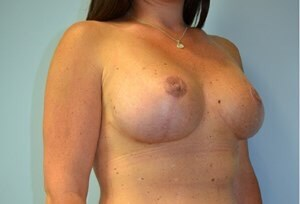 Breast lift/implant exchange After