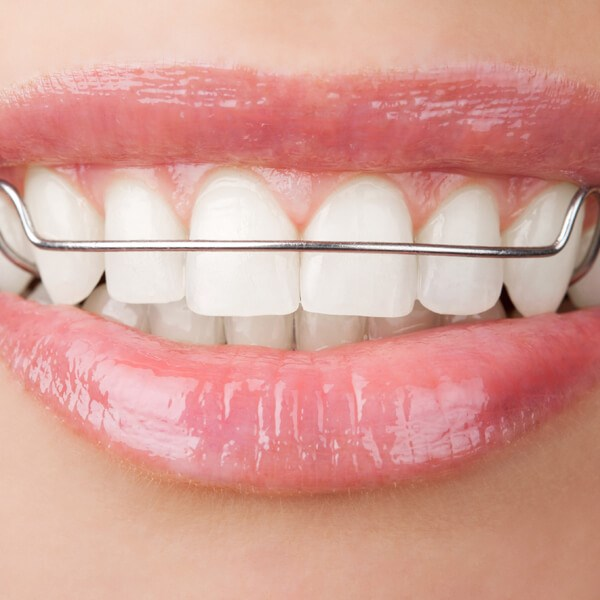 Orthodontic Retainers Image