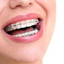 Clear Ceramic Braces*