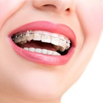 Self-Ligating Braces*