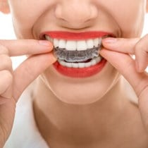 Red, White and Blue Aligners*