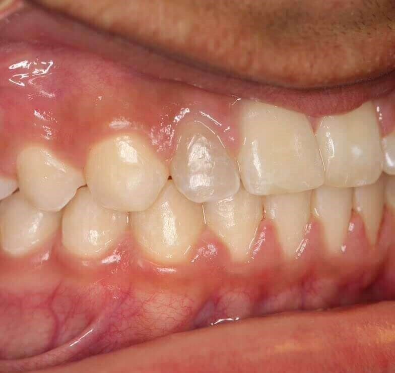 "Whitening a ""dark tooth"" Before"
