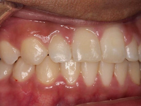 "Whitening a ""dark tooth"" After"