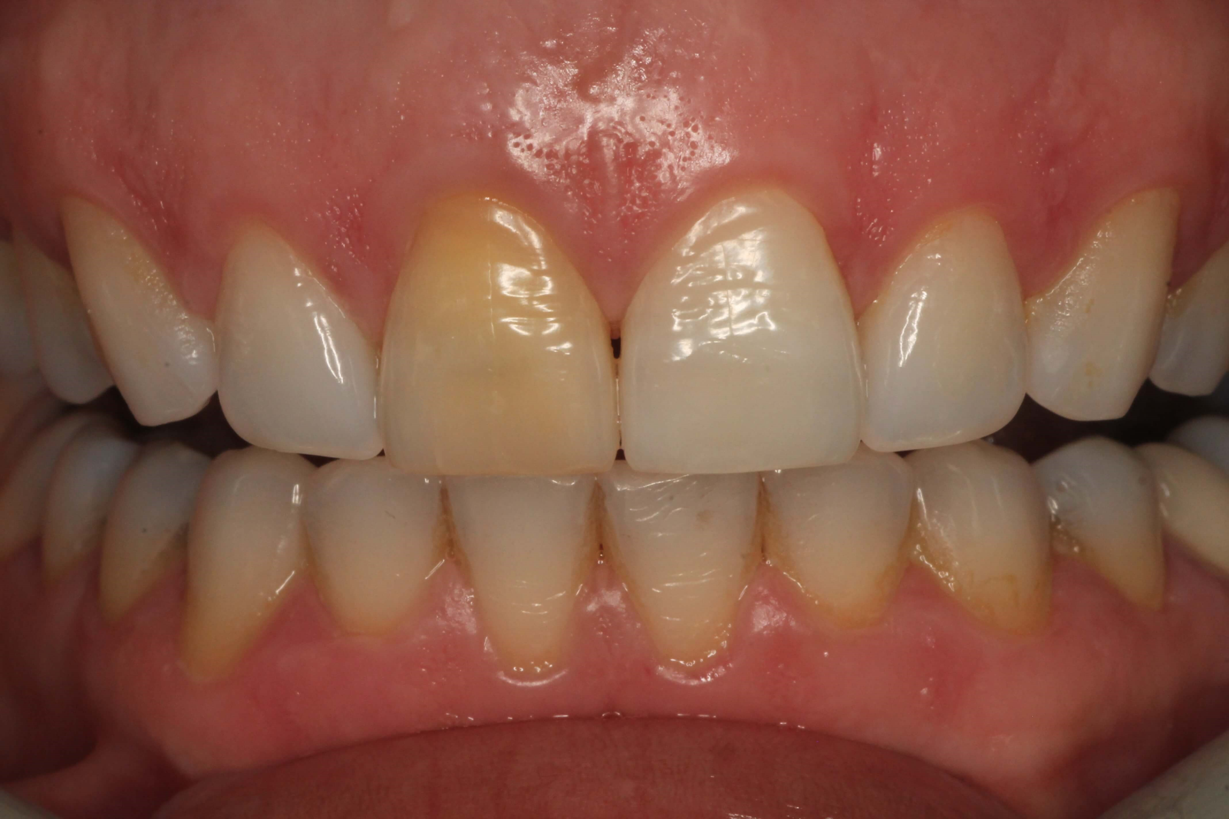 "Whitening a ""discolored tooth"" Before"