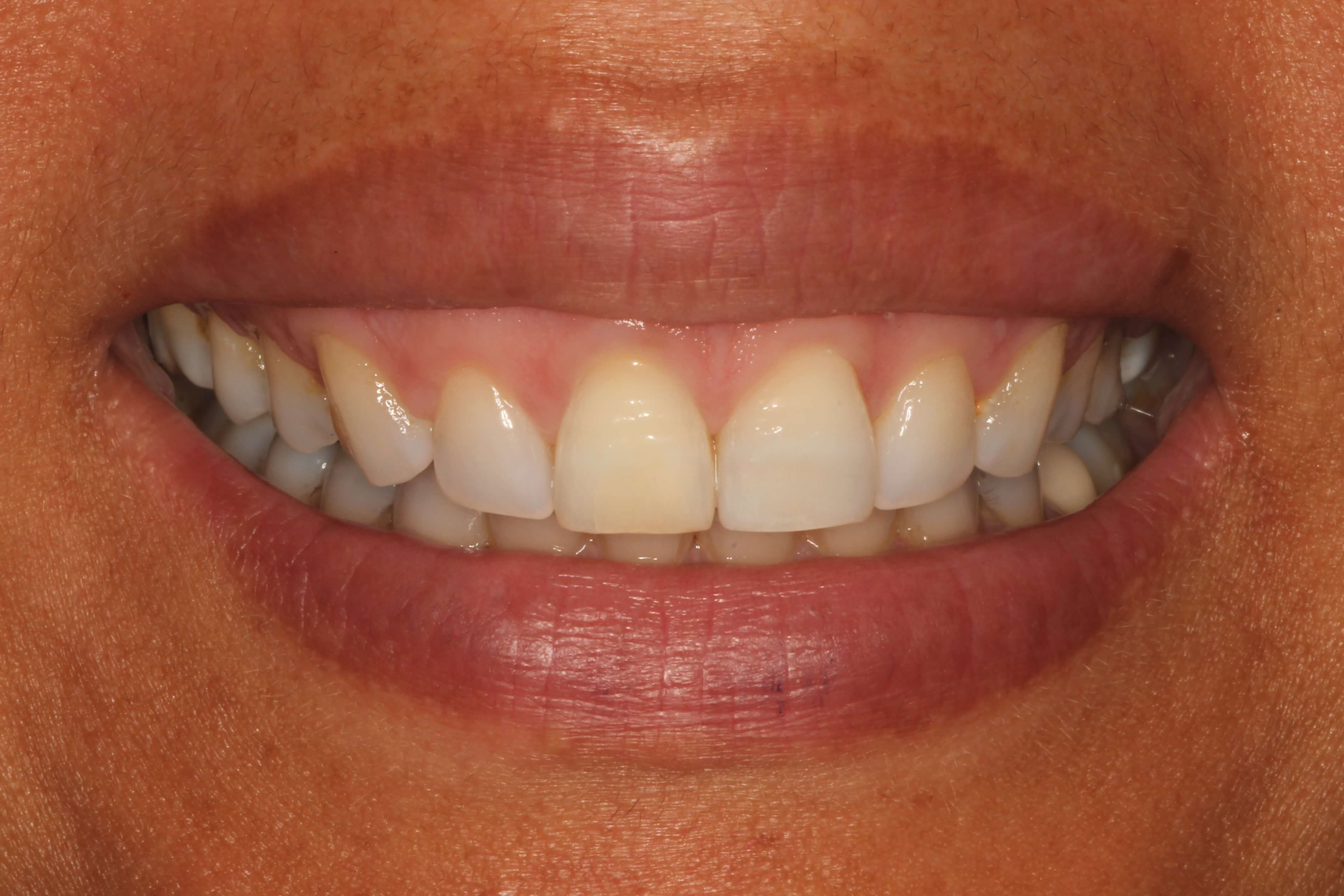 "Whitening a ""discolored tooth"" After"
