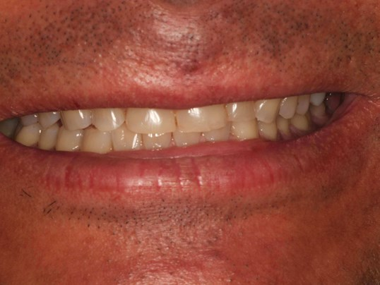 Crown Dental Boding to Restore Before