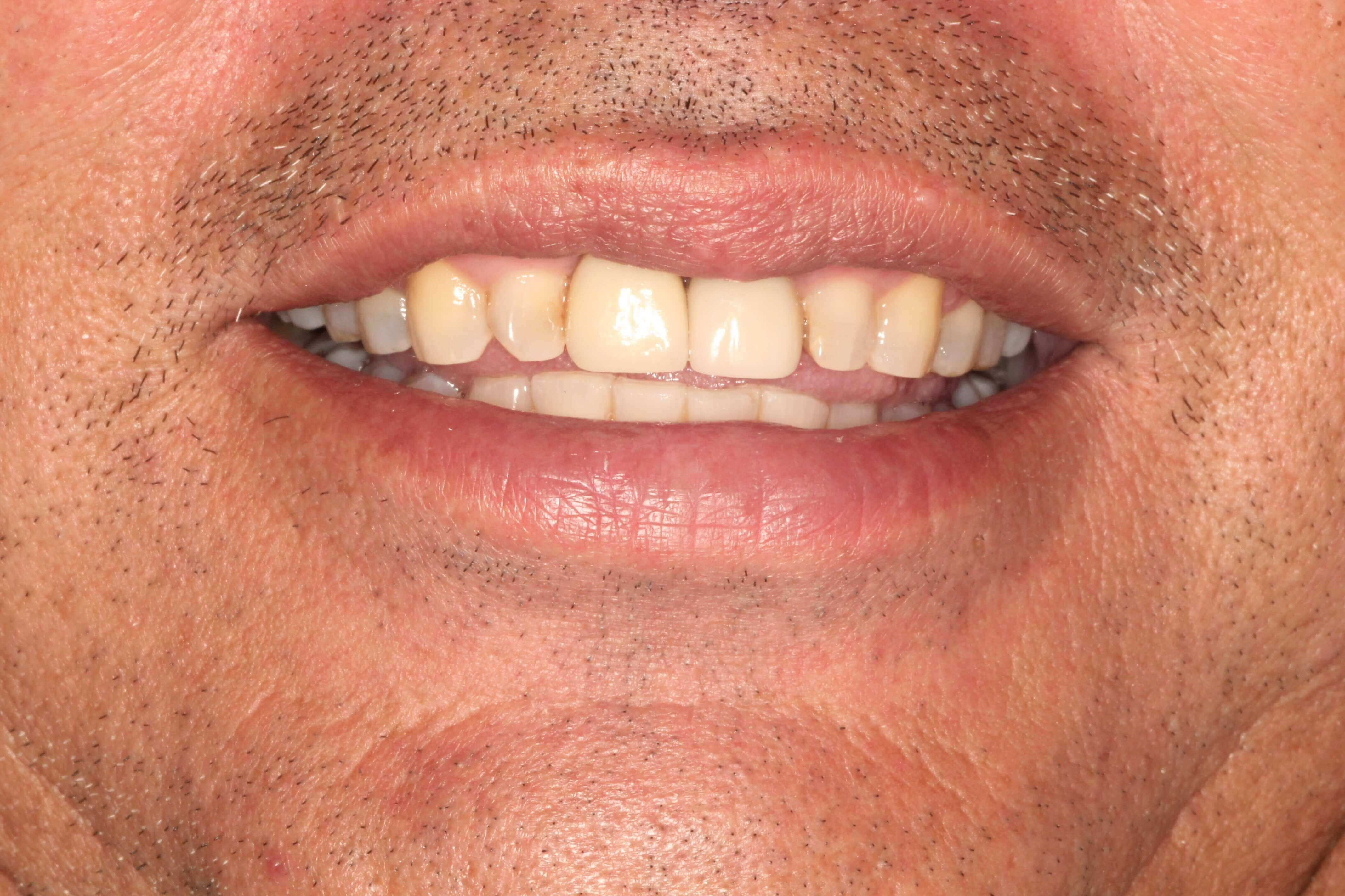 Dental Implants Crown Dental After Dental Implant and Crown