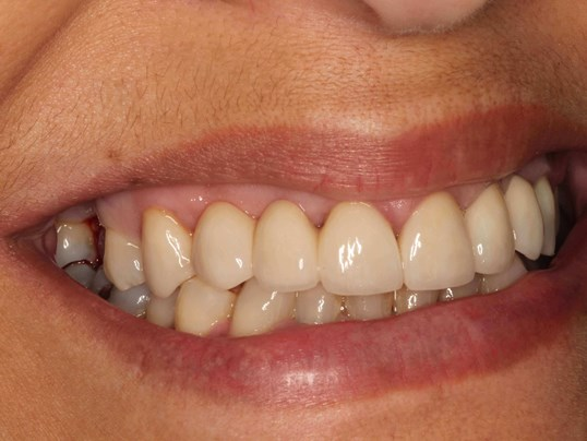 Dental Implants West Richland Before Dental Implant