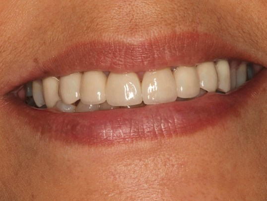Dental Implants West Richland After Dental Implant