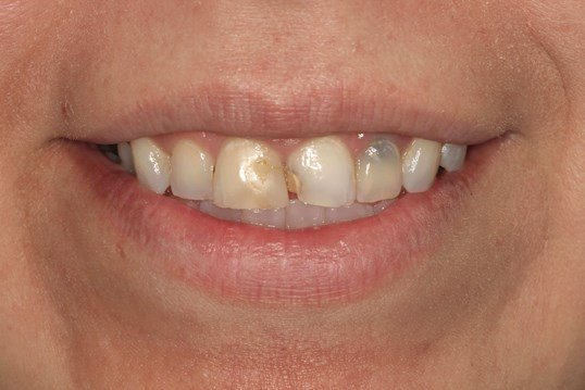 Cosmetic Dental Crown Tri-city Before