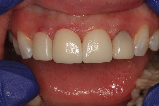 Cosmetic Dental Crown Tri-city After